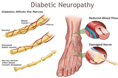 Diabetic Neuropathy Pain Reduction