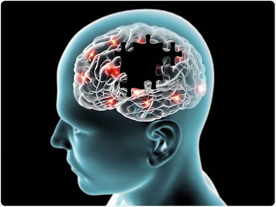 Alzheimer's Disease-Related Dementia Infrared Light Therapy