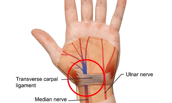 Carpal Tunnel Pain Reduction