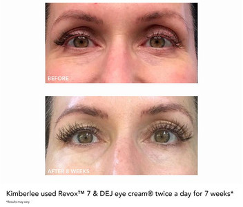 Revox 7_revision_skincare_customer_reviews