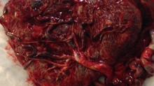What Does Your Placenta Say About Your Health?