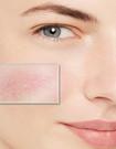 DADOSENS gevoelige, couperose en rosacea