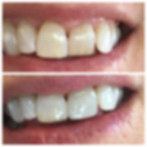 Dental porcelain veneer