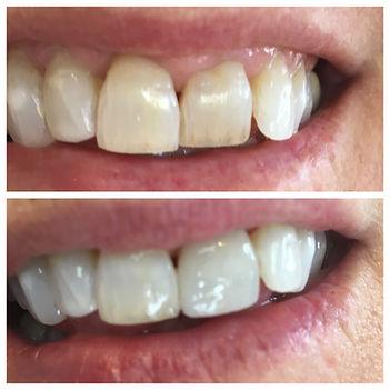 Dental porcelain veneer