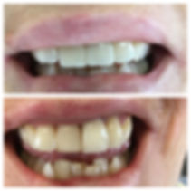 Dental veneer and crown