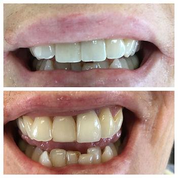Dental veneer and crown