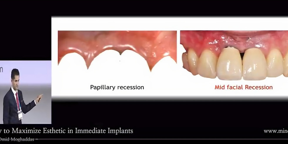 [Webinar] Risks in Anterior Implants : How to Prevent Complications by Dr Omid Moghaddas