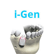 iGen | MegaGen Australia Dental Implants |