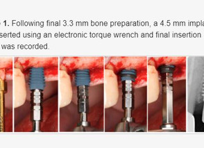 Primary Stability Optimization by Using Fixtures with Different Thread Depth According To Bone Densi