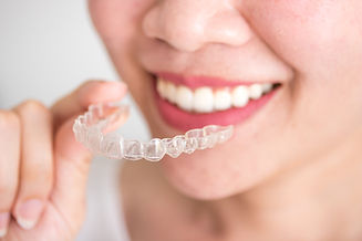 Invisalign Retainer at Orthodontist Fremont Patricia J Sing Choi, DDS.jpeg