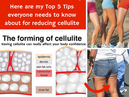 Top 5 Tips for reducing cellulite