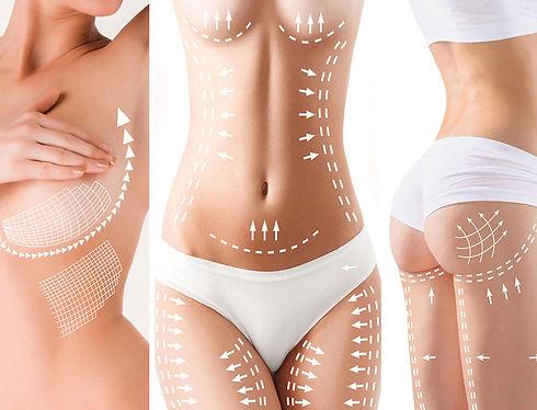 Body-Shaping-img.jpg