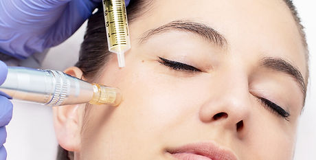 Revive-Face-Mesotherapy.jpg