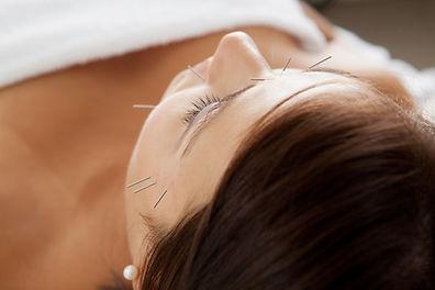 Portland Acupuncture | Cosmetic Facial R
