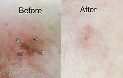 Before and After | Portland Acupuncture | Cosmetic Facial Rejuvenation in Portland, OR