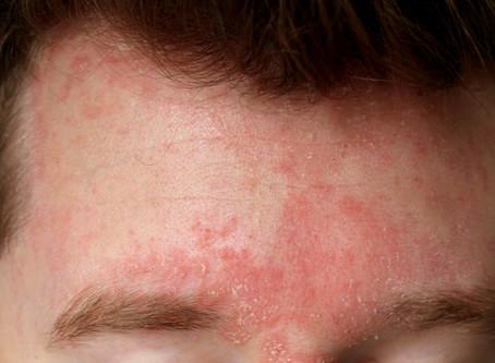 Holistic TCM Dermatology: Seborrhoeic Dermatitis