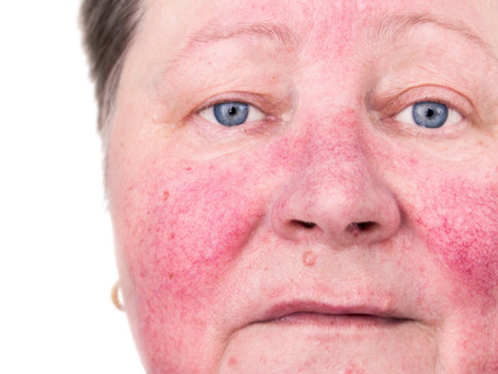 Holistic TCM Dermatology: Rosacea