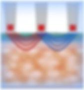 Многополярная система RF-лифтинг
