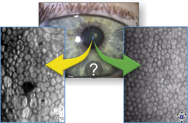CellChek-low-vs-high-ECD-images.png