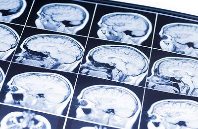 MRI of the brain. snapshot.jpg