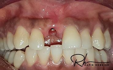 7b-implants.jpg