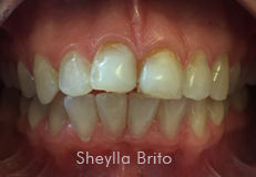 clear-correct-veneer-before-2.jpg