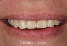 dentures-b2.jpg