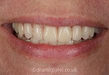 dentures-a2.jpg