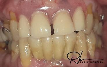 9a-dentures.jpg