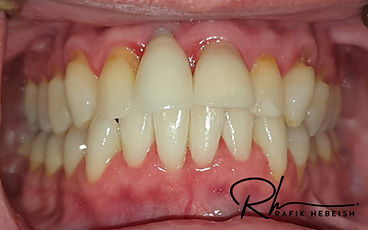 8a-implants.jpg
