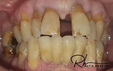 9b-dentures.jpg