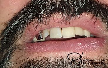 6a-implants.jpg