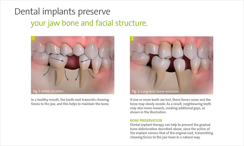 Dental implants preserve