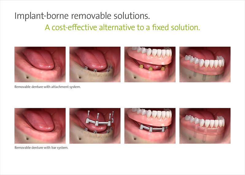 Implant-borne removable solutions