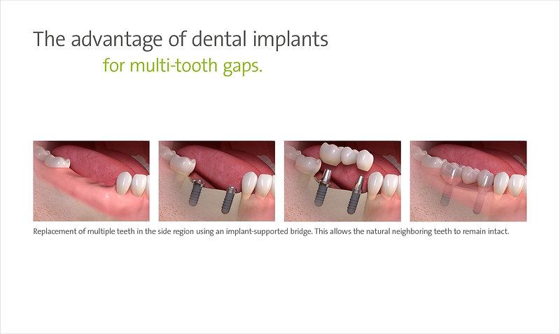 The Advantage of dental implants