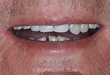 dentures-before.jpg