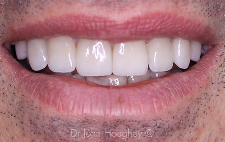 smile-makeover-after