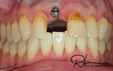 8b-implants.jpg