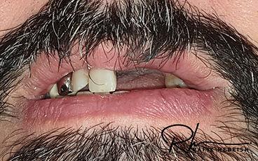6b-implants.jpg