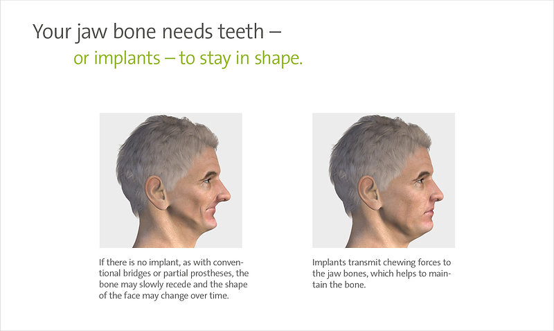 Your jaw bone needs teeth