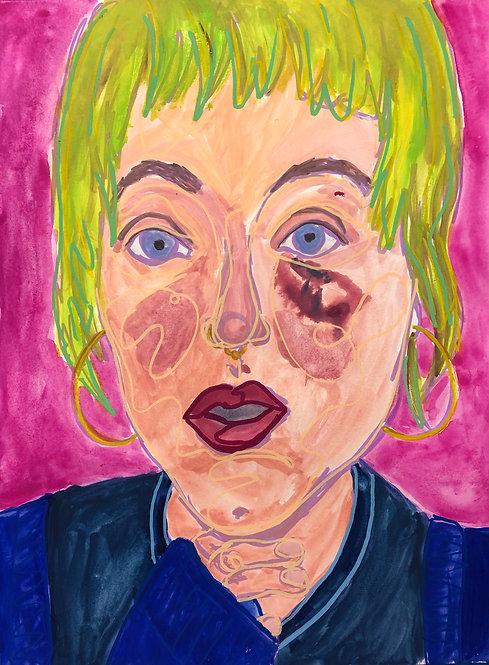 Original Painting 'Nikki With a Black Eye'