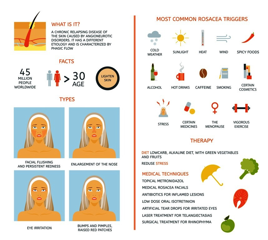 Rosacea causes and treatment infograph