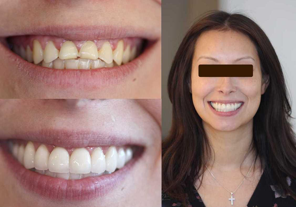 IPS  e MAX crowns