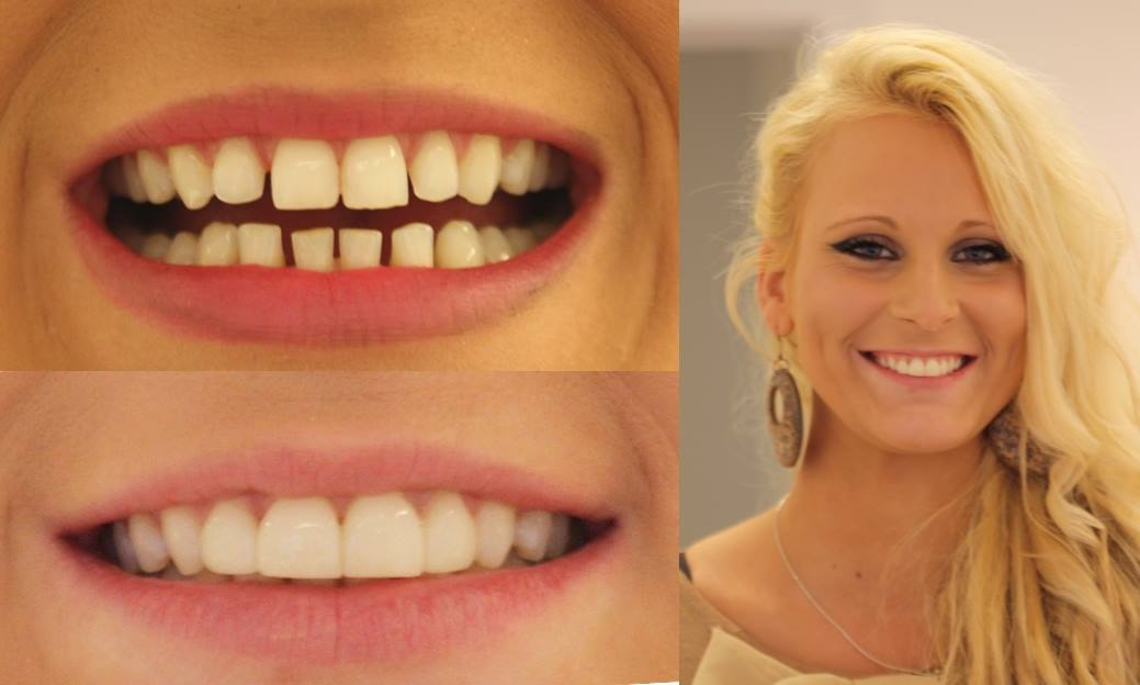 Dental Make Over
