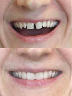 Cad Cam Dentistry