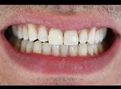 Bleaching | Dental  Make over