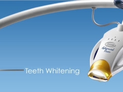 Teeth Whitening | Cosmetic Dentist