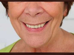 Dental Implants | click denture | All on 4