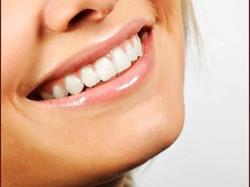 Teeth Make Over | Smile Design