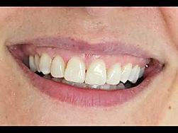 Lumineers - Dental Make over - Veneers